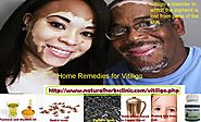 8 Rapid Home Remedies for Vitiligo
