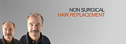 Non Surgical Hair Replacement In karnal | Hair Beauty Cure