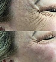 Cost-Effective Anti Wrinkle Injections Treatment In Brisbane