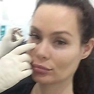 Injex Clinics - Hollows under the eyes can make you look...