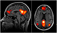 What Happens to Your Brain with Faster EFT?