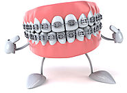 3 Factor That Determine the Cost of Dental Braces | Vita Dental Houston