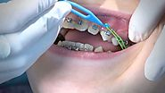 10 Reasons People Are Rushing To Get Dental Braces | Katy Dentist Care