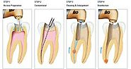 Root Canal Teatment Greensborough