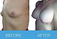 Know More about Breast Implants and Fat Transplant