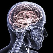 Neurological injuries unrelated to spinal cord damage.