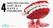 4 Mouth Signs - You Need to Know about a Problem | Katy Dental Services