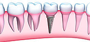 Dental Implants Las Vegas, Henderson - Dr. George Harouni