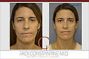 Rhinoplasty Dallas - Constantine Plastic Surgery