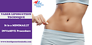 Best Liposuction India
