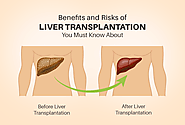 Benefits And Risks Of Liver Transplantation You Must Know About – Heart Care Hospitals