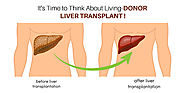 It's Time to Think About Living-Donor Liver Transplant! – Heart Care Hospitals