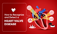 How to Recognize and Detect a Heart Valve Disease – Heart Care Hospitals