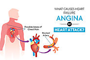 What Causes Heart Failure – Angina Or Heart Attack?