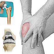 http://www.dwarkaorthopaedics.com/joint-replacement/