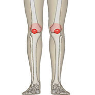 Knee Replacement Delhi, Knee Replacement Surgery in Gurgaon