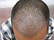 Get Hair Transplant Treatment in Delhi
