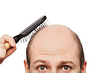 Facts that You Need to Know about Hair Transplant