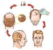 Know more about Hair Transplant