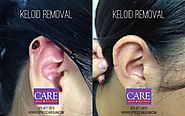 Guam Clinic- Keloids Removal in Guam