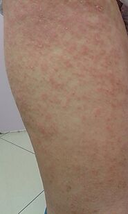 Guam Clinic – find the best treatment for rashes