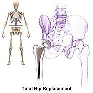 Hip Replacement Surgery in India with List of Best Hip Replacement Hospitals in India
