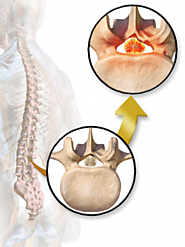 Spinal Decompression Surgery in India | Spinal Treatment in India