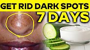 Remove Dark Spot In Nose With In 7 Days | 100% Natural