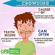 Do you have Non Aligned Teeth