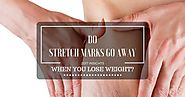 Do Stretch Marks Go Away When You Lose Weight?