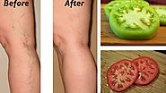 Natural Remedies for Varicose Veins using tomato
