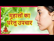 मुहासों का घरेलु उपचार | Herbal Treatment of Acne | Home Remedies | Health Tips By Divyarishi