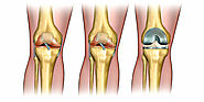 What Are The Different Types Of Knee Implants?