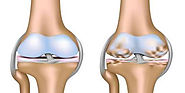 All You Want To Know About Osteoarthritis