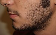Beard Transplant Recovery - Rejuvenate Hair Clinics