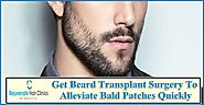 Get Beard Transplant Surgery To Alleviate Bald Patches Quickly – rejuvenatehairclinics