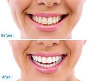 Fuller Smile in 3 Days with Permanent Teeth without Pain