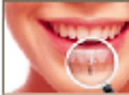 Find the Best Dentists in Mumbai for Swiss Implant and Other Dental Care Services