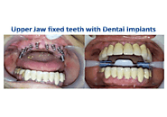 Immediate Loading Implant in India – Find Top Dentists in Mumbai India