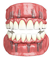 Painless and Full Mouth Implants by Experienced Dentists in Mumbai India