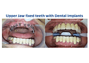 Implant Fixed Denture and Immediate Loading Implant in India