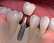 Procedure of Dental Implants in Mumbai – Important to Understand