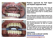 Full Mouth Implants in India by Top Dentists in Mumbai