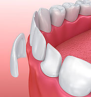 Porcelain Veneers Sydney | Dental Veneers North Shore - North Shore Dentistry