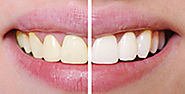Teeth Whitening Chippewa Falls | Winn Family Dentistry