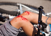 Bicycle Accidents and You