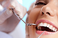 Dentist Castle Hills, Sydney – Your Local Dentist