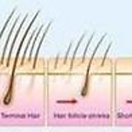 Hair Loss Treatment For Women and Hair Fall Treatment for Women. | hair transplant centre