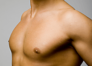 Male Breast Reduction | Gynecomastia in Punjab, India