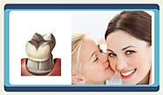 Best Dental Crowns in Mexico